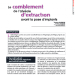 Le comblement de l'alvéole d'extraction